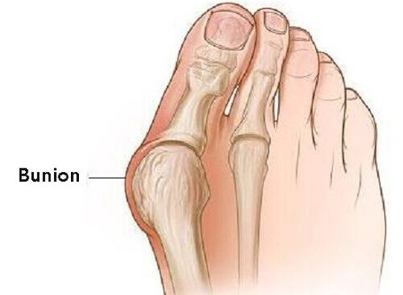 This Is What The Bump On The Outside Of Your Big Toe Joint Is