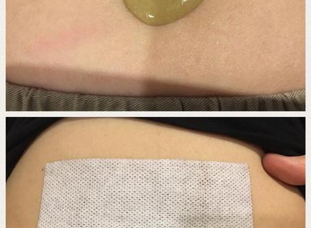加強版臍療方,溫暖子宮增加血液循環平坦小腹