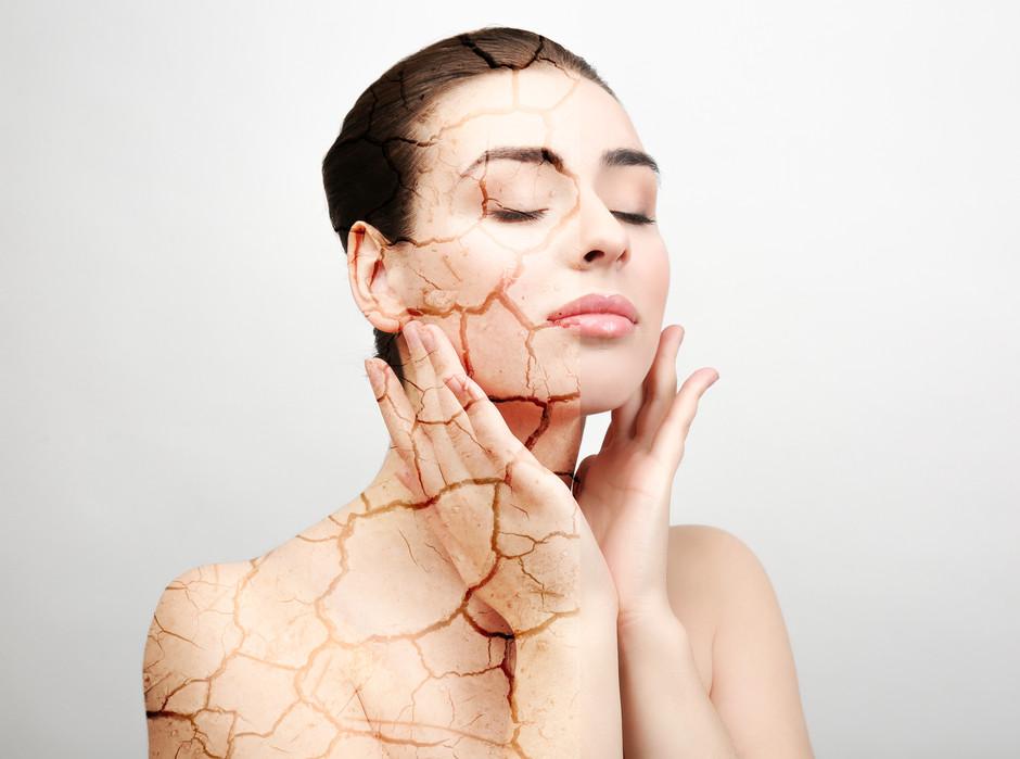 Dry vs. Dehydrated skin