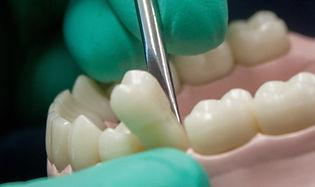 Extractions Regency Dental Practice Swanage Dorset