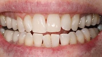 Teeth Whitening Regency Dental Practice