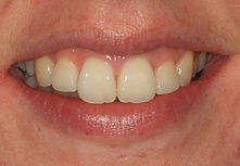 Orthodontic Treatment Swanage Dorset After