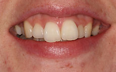 Orthodontic Treatment Swanage Dorset Before