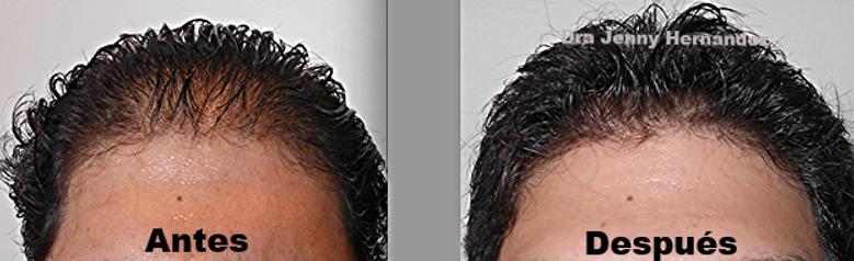 """""""Quito, solución a la caída de cabello con plasma rico en plaquetas"""