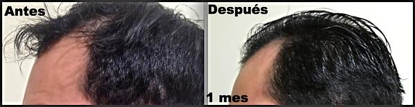 Solución a la caída de cabello con plasma rico en plaquetas en Quito