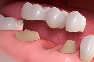 dental-bridges-in-cotswolds-gloucestersh