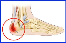 How Physiotherapy Can Help With Heel Pain