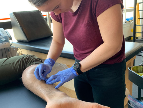 5 Benefits of Dry Needling