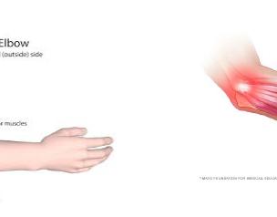 Acute Management of Tennis Elbow & Golfer's Elbow