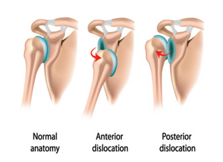 Acute Management of a Dislocated Shoulder