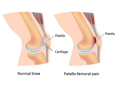 Diagram comparing a normal knee to one with patello-femoral pain.