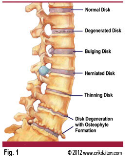 Image retrieved from: http://www.sc-aktivity.at/tsnwvk.php?q=ruptured-disc-vs-herniated-disc