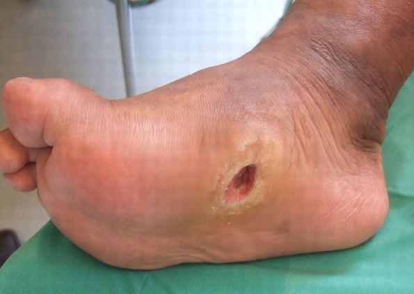 Diabetic Foot Wounds