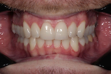 men invisalign