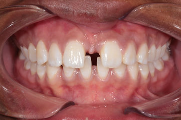 Gaps in Teeth - Dentistry