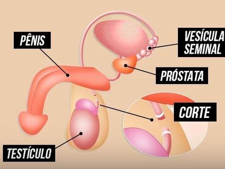 Cirurgia de Vasectomia em BH - O que é, como tratar e quando a cirurgia é necessária?