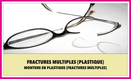 Multiple Fractures (Plastic)