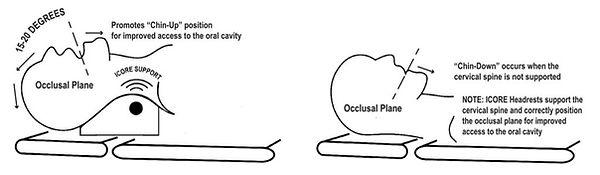 Occlusal-Drawing-1024x299.jpeg