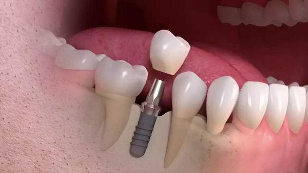 Straumann-Implant-borne-1024x576.jpg