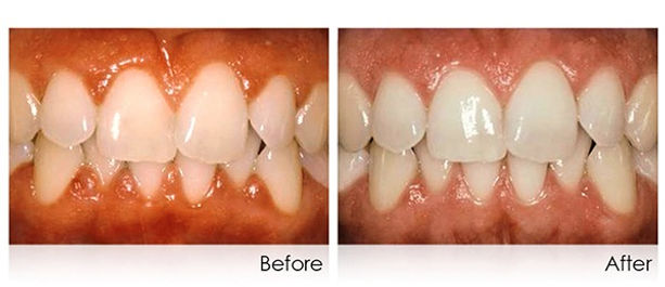 periodontal-2_edited.jpg