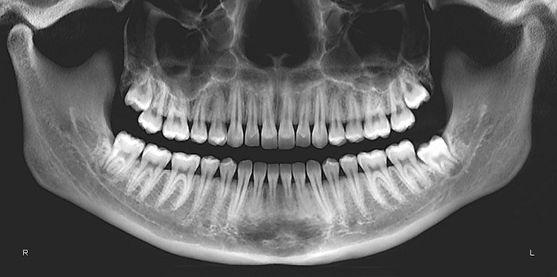OPG Dental.jpg