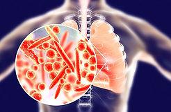 Pneumonie_edited.jpg