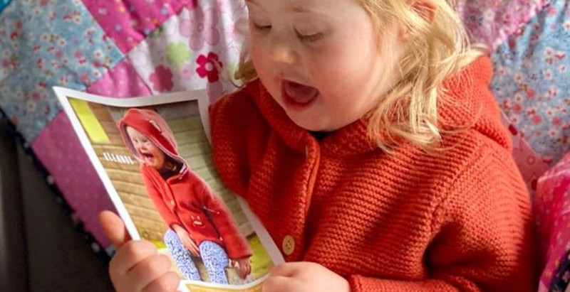 Egy kétéves downos kislány útja a modellvilágba