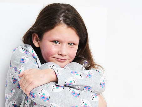 Egy ekcémás kislány útja a modellek világába