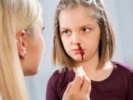 Ezt soha ne tedd, ha vérzik a gyerek orra!