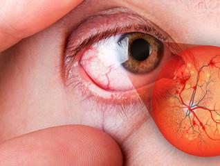 Retinopatia Diabética, um risco para a visão.