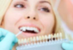 Training - Teeth Whitening-3.jpg