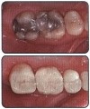 Why Do We Do Resin Bonded Fillings?