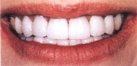 Cosmetic Dentistry - A Celebrity Smile