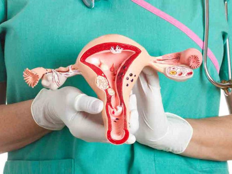 Ovarian Cyst and Risk Factors Associated with it