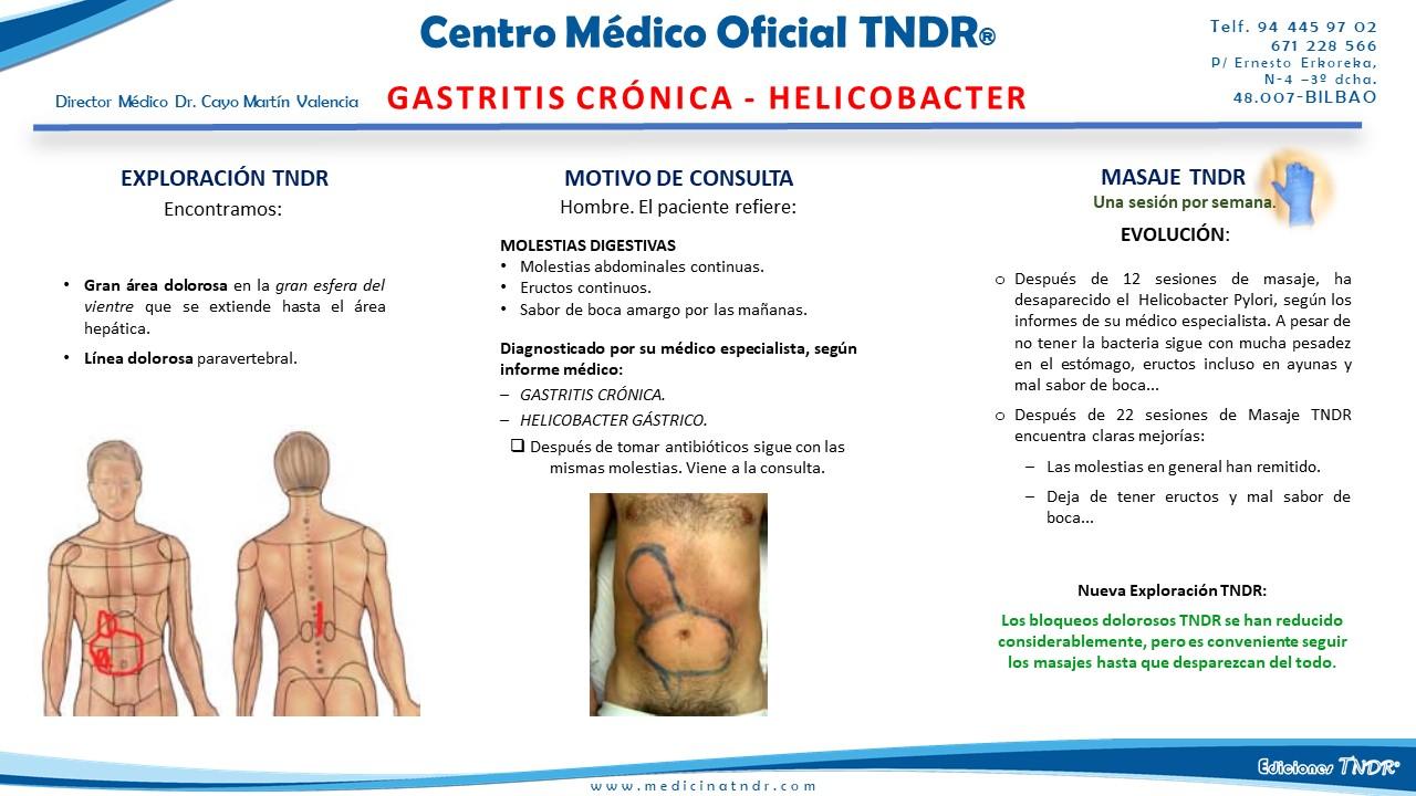 Gastritis_Crónica