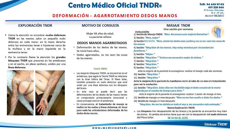 Deformación_Dedos_Manos.jpg