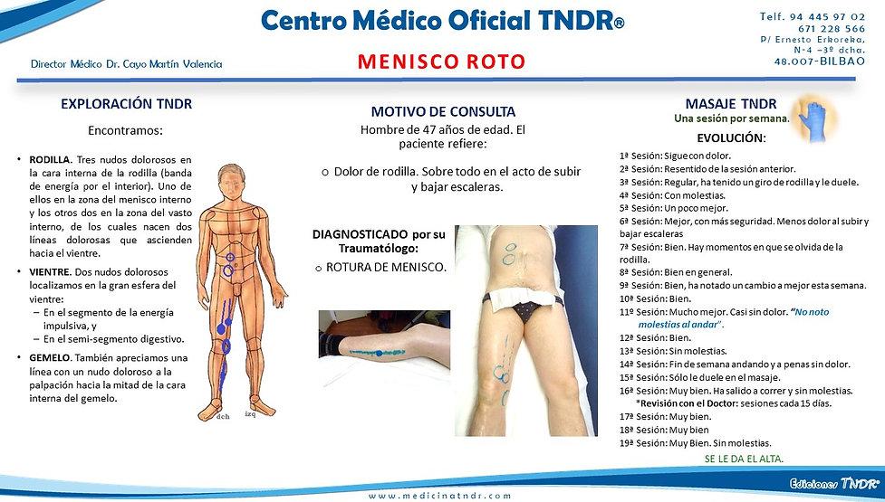 Caso Clínico de Artrosis de Rodill