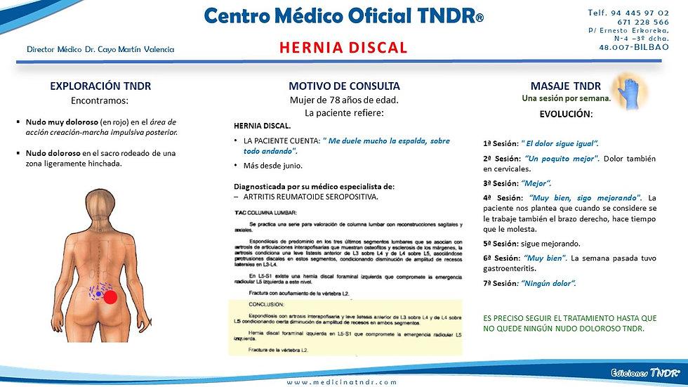 Hernia Discal-.jpg