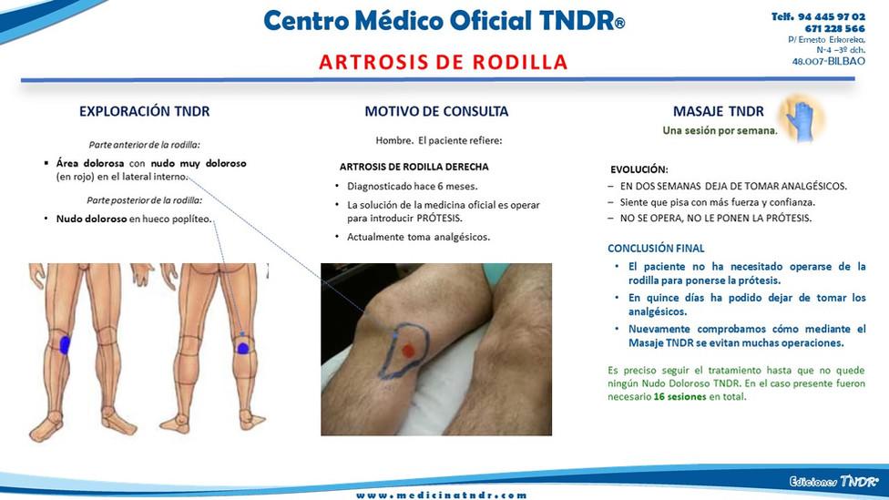 Artrosis de rodilla.jpg