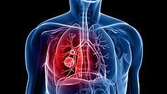 COPD-IH-8001-image.jpg
