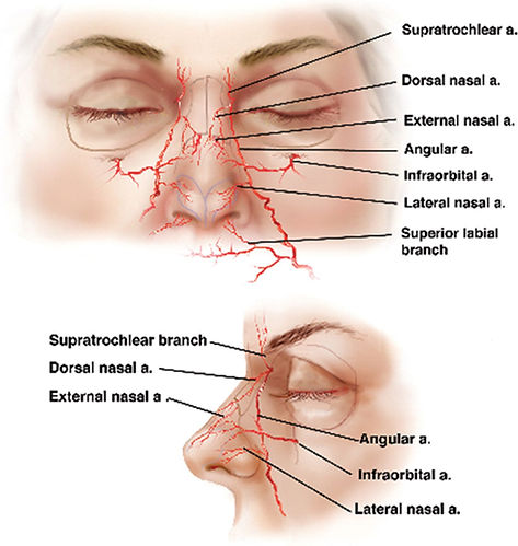 Complications Botox Fillers