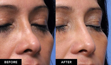 dermal fillers platinum 1.jpg