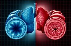 asthma copd training.jpg