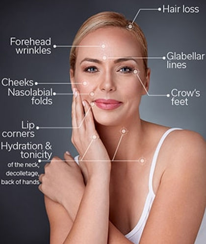 mesotherapy-areas-approved.jpg