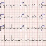ECG Interpretation Training 2.jpg