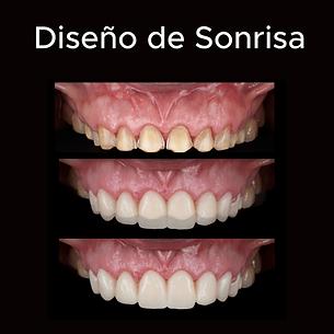Diseño de Sonrisa.png