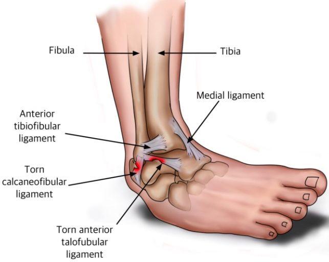 ATFL ankle sprain