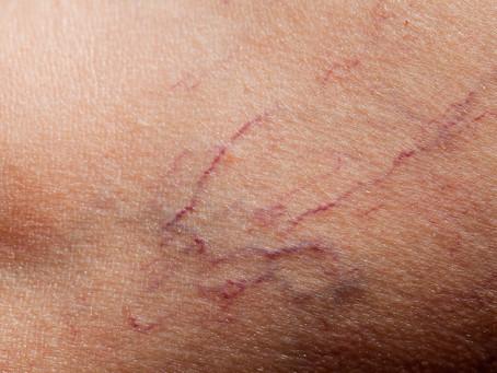 What Are Broken Capillaries?!