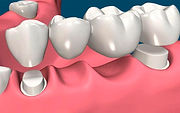 rehabilitacion-oral-8.jpg