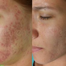 Acne Scarring x6 treatments --wm.jpg